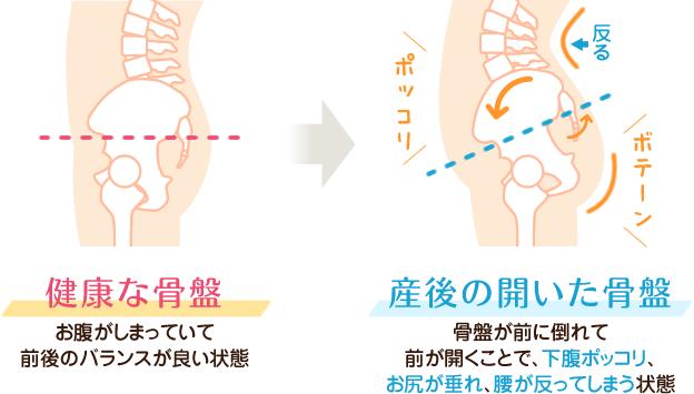 骨盤の傾きによる下腹ポッコリ・垂れ尻
